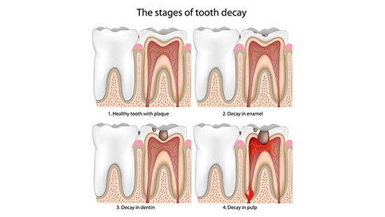 Prevent Tooth Decay - Imperial Dental Center, Sugar Land, TX