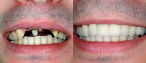 A patient before and after dental implants in Sugar Land, TX