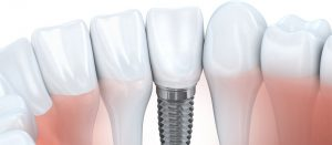 Tooth Implant - - Imperial Dental Center, Sugar Land, TX