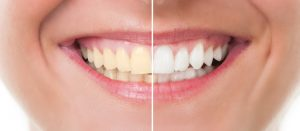 Cosmetic Dentist Before and After in Sugar Land, TX