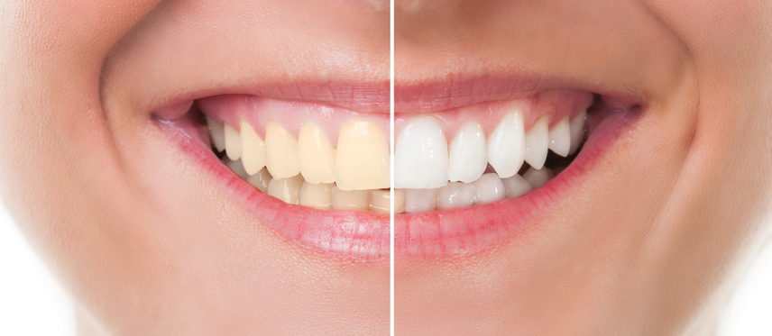 Teeth Whitening - Imperial Dental Center, Sugar Land, TX