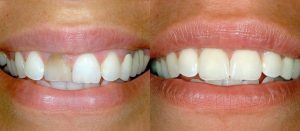 Cosmetic Dentistry Before and After - Sugar Land, Texas