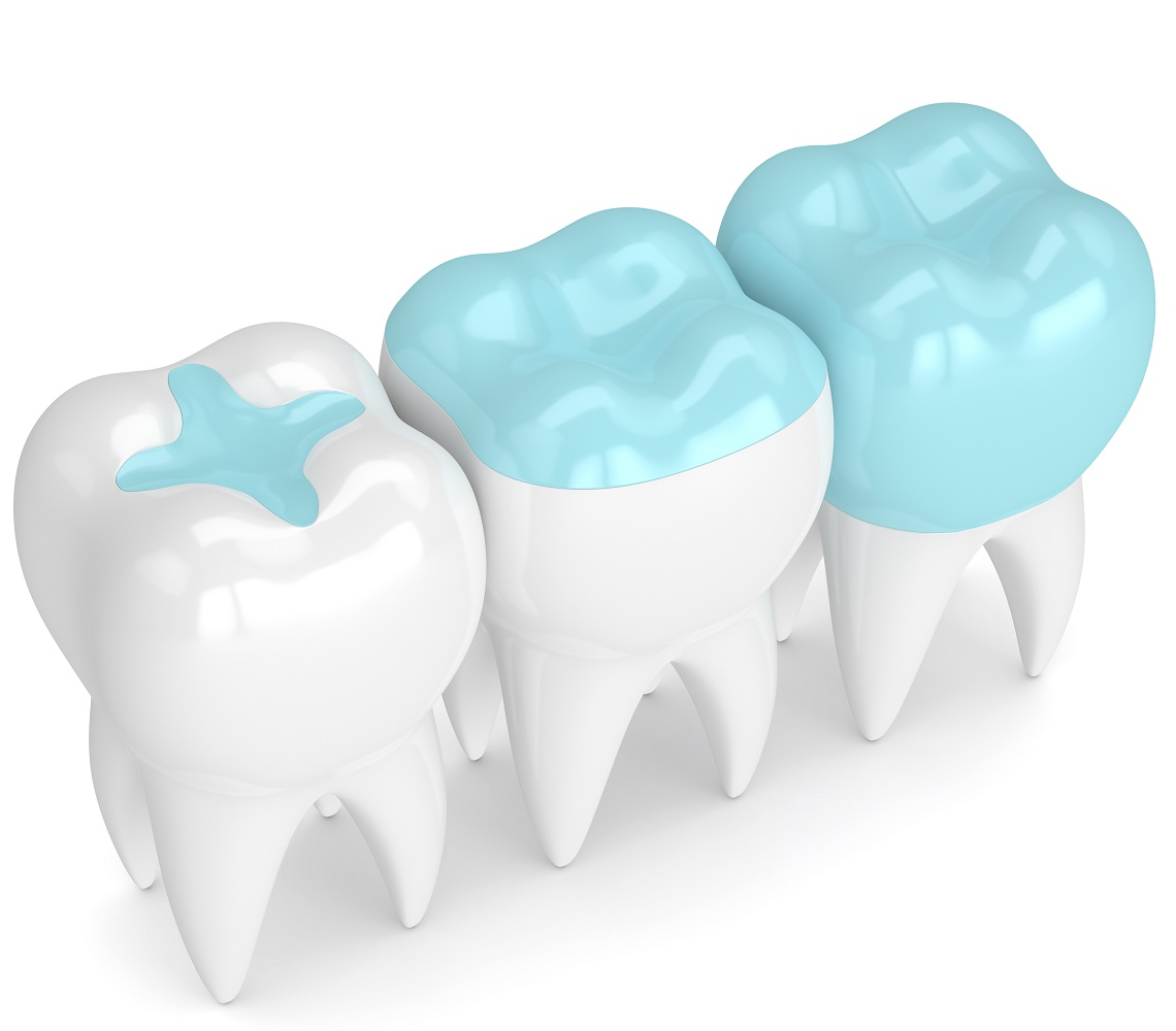 Dental Sealants Sugarland TX