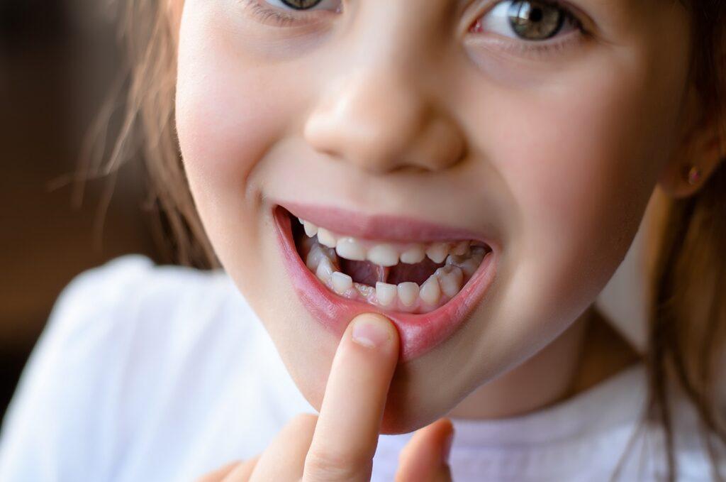 Tooth Fairy-Childrens Dentist-Dental Hygiene